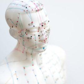 Akupunktúra pri liečbe akútnej bolesti